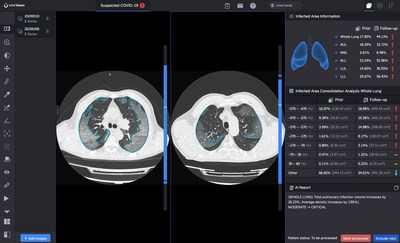 InferRead CT Pneumonia™ compares the progress of infection and quantifies changes over tim